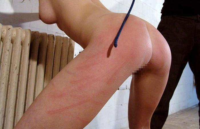 (SMえろ写真)(※閲覧注意)ライフに支障が出そう…ハード折檻で傷だらけなM女の尻wwwwww